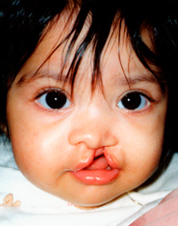 baby_with_cleft